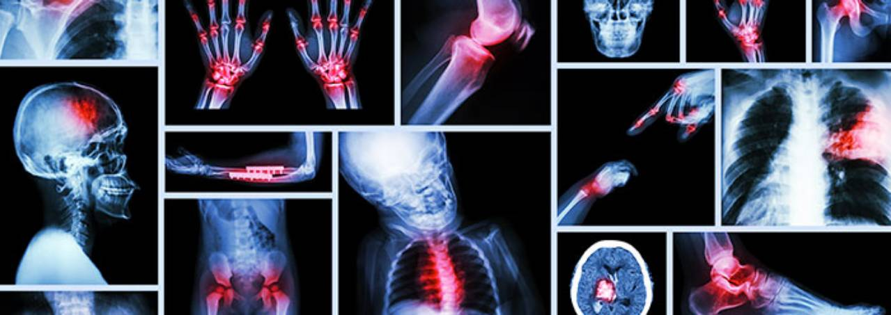 Orthopedic Surgery and Rehabilitation